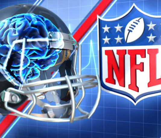 HIGHLIFE-NFL-concussions